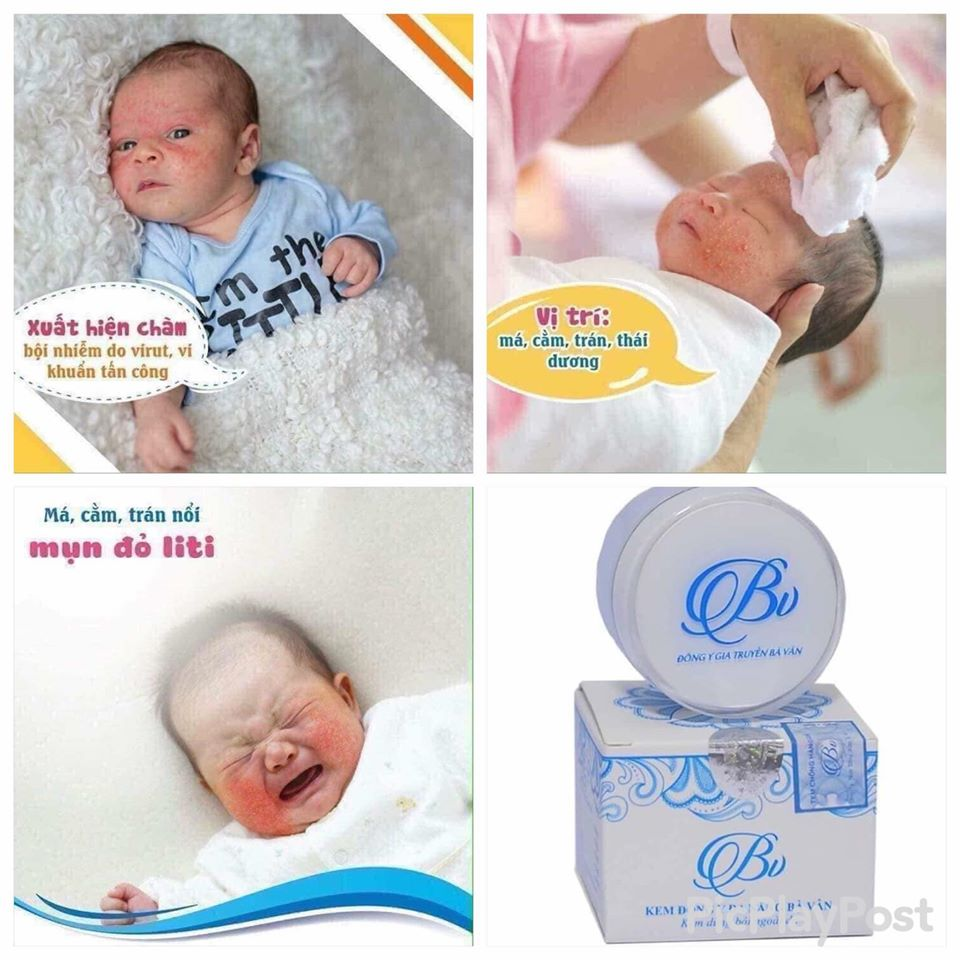 Thời điểm Vàng trị chàm sữa cho trẻ là khi nào?